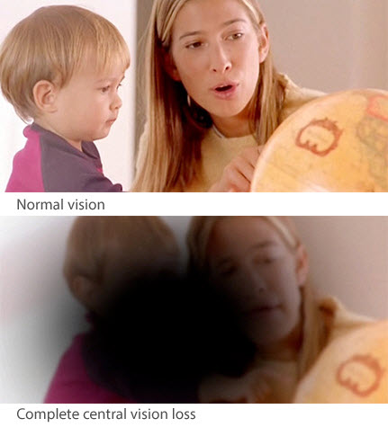 How your vision can look with AMD. (From Macular Degeneration NZ, www.mdnz.org.nz)