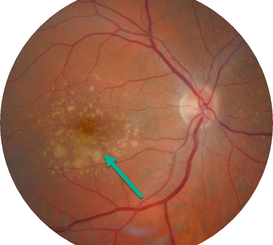 Signs of a retina of an eye with macular degeneration.