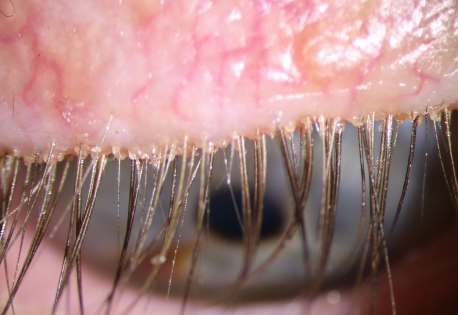The eyelid debris in someone with anterior blepharitis.