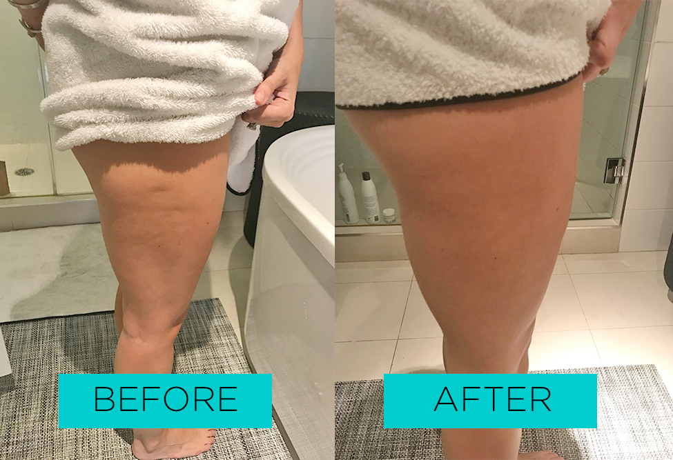 Lauren's toning treatments showed results in one week.