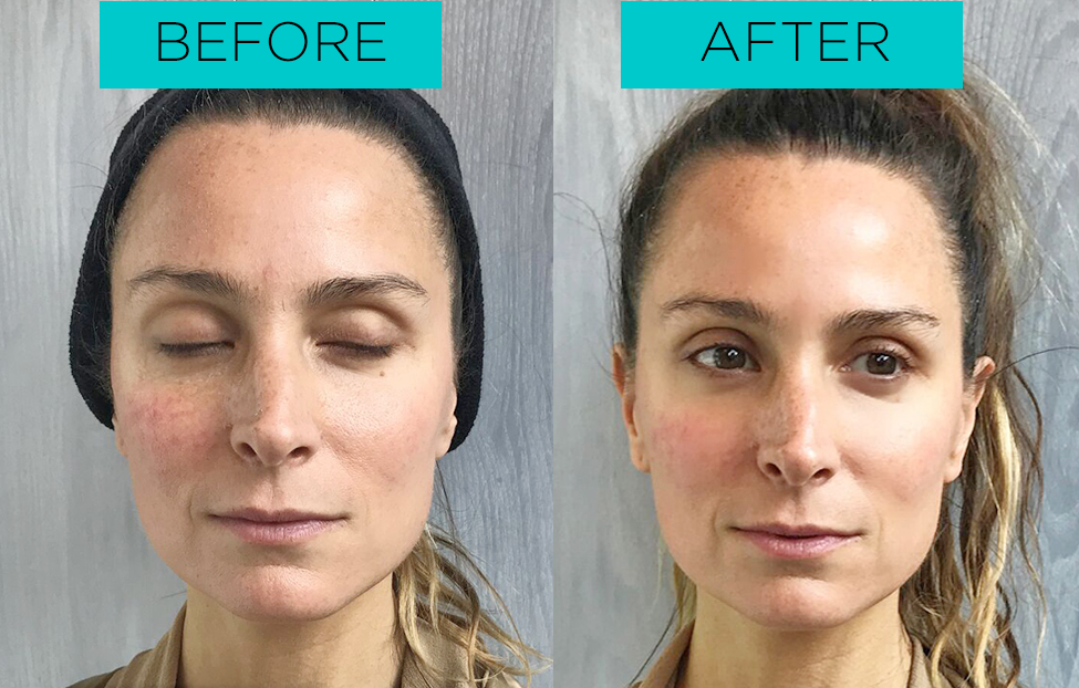 Kera received facial treatments to rid her skin of aging spots.