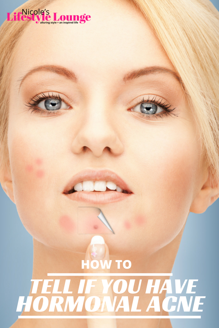 a few clues to help you figure out whether your acne is caused by fluctuations in your hormones. #skincare #hormonalacne #acnecare