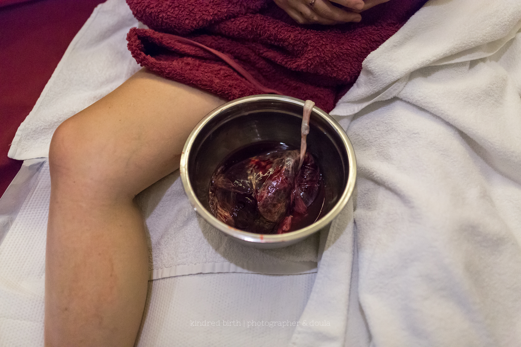 placenta in bowl