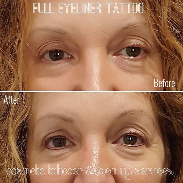 FULL EYELINER TATTOOING . . #reneecosmetictattooer #finelinetattoosmelbourne #teamfineline #lashenhancement #eyeliner #eyelinertattoo #eyetattoo #ink #inked #eyebrowtattoo #feathertouchbrows #feathertouch #powderbrow #ombrebrow #perfectbrows #fulleyeliner #eyetattoo #browneyeliner #tattoos #browsonpoint#cosmetictattoo #permanentmakeup #pmu #richmond #foster #taylorslakes