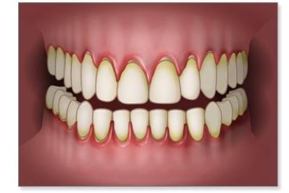 tandvleesontsteking.png