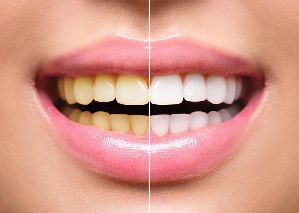 gele-tanden-bleken-8118-1537514209.jpg