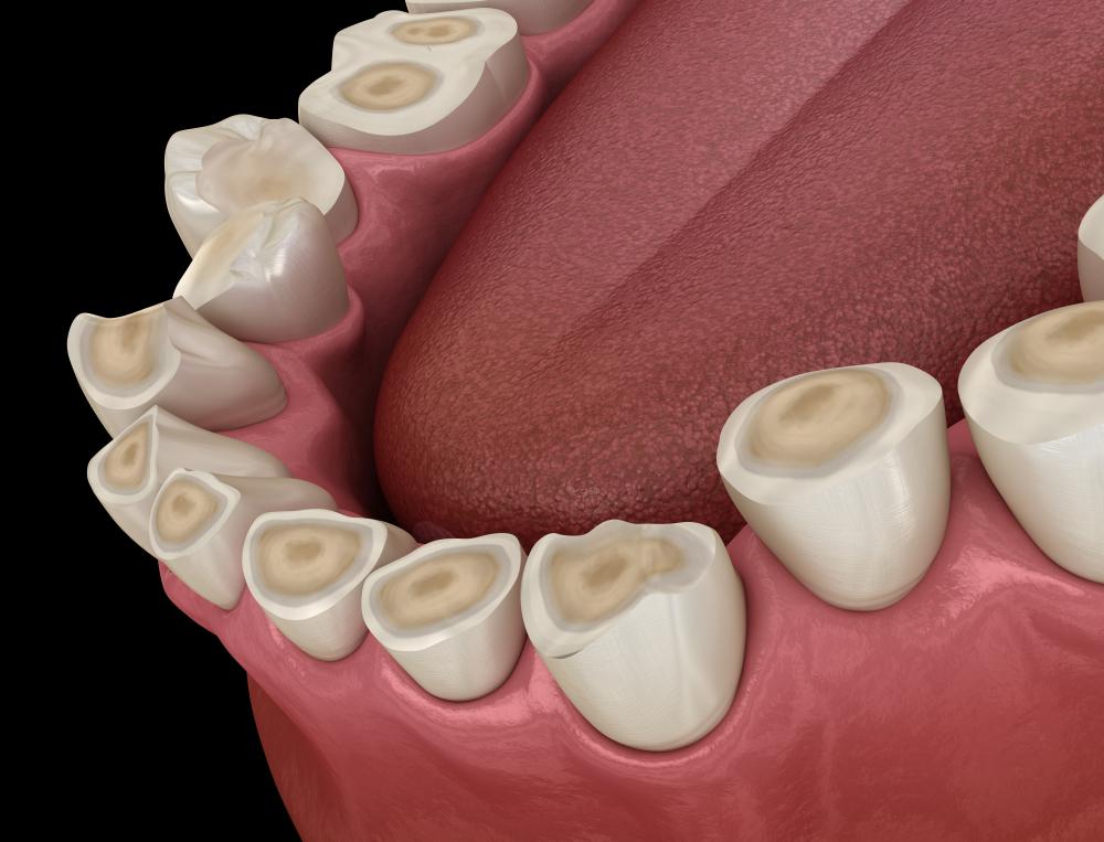 tandenknarsen-bruxisme.jpg