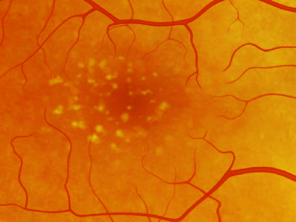 Late Stage Dry AMD results in loss of definition and colour in the central zone of one's vision, and hence is particularly debilitating. There is currently no cure, despite the widespread prevalence of this condition.