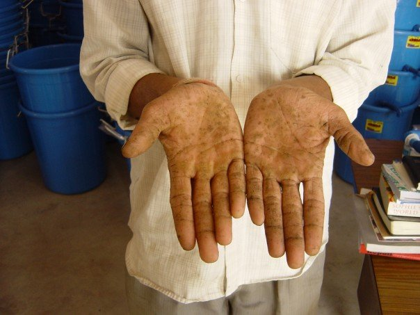 A man's hands show evidence of arsenicosis;  http://www.filtersforfamilies.org/