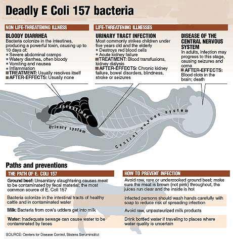 Deadly E Coli 157 Bacteria