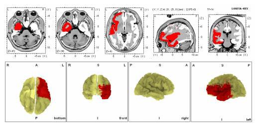 Brain-Mapping6.jpg