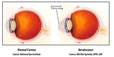 Image of Normal Cornea vs Keratoconus Cornea