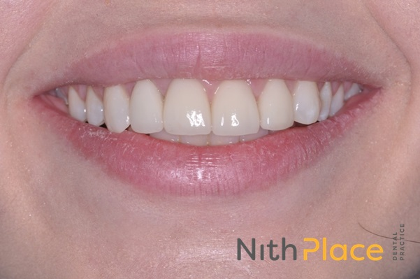 After - 4 beautiful e-max ceramic crowns and cosmetic bonding of composite to re-shape the canines gives a great smile.