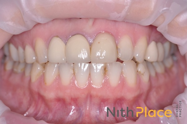 Before - Patient was unhappy with the appearance of several older crowns and bridges and wanted a brighter, natural smile for her wedding.