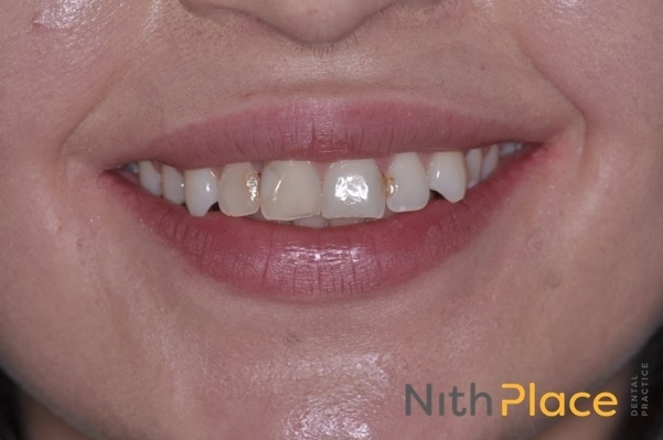 Before - Patient was unhappy with her discoloured, chipped front teeth and 'pointed' canine teeth.