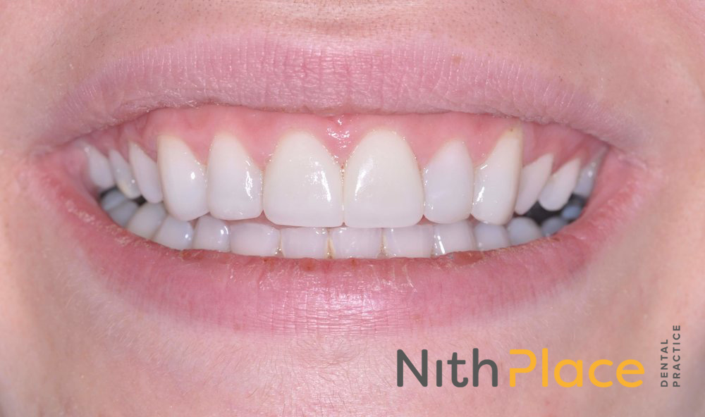 After - Treatment carried out with Tooth Whitening, Porcelain veneers and cosmetic bonding gave a great result.