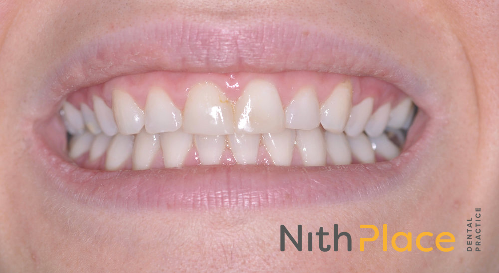 Before - Patient was unhappy with the shape/size and colour of her teeth