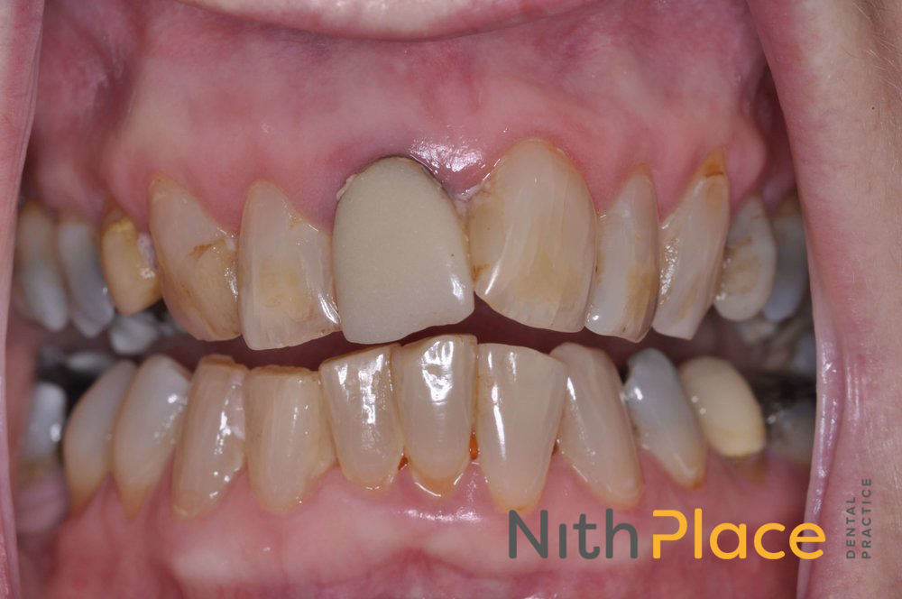 Before - Patient was unhappy with her smile, and wanted to improve the colour, shape and position of her teeth, but still look natural.