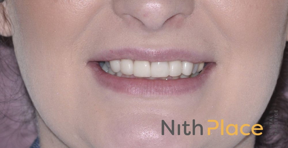 After - A great smile for the wedding was achieved with tooth whitening, and 6 porcelain veneers.
