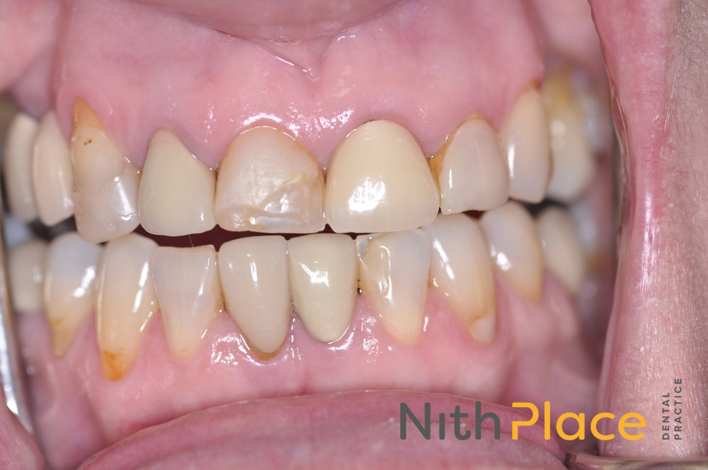 Before - Patient was unhappy with the appearance of her old crowns and veneers