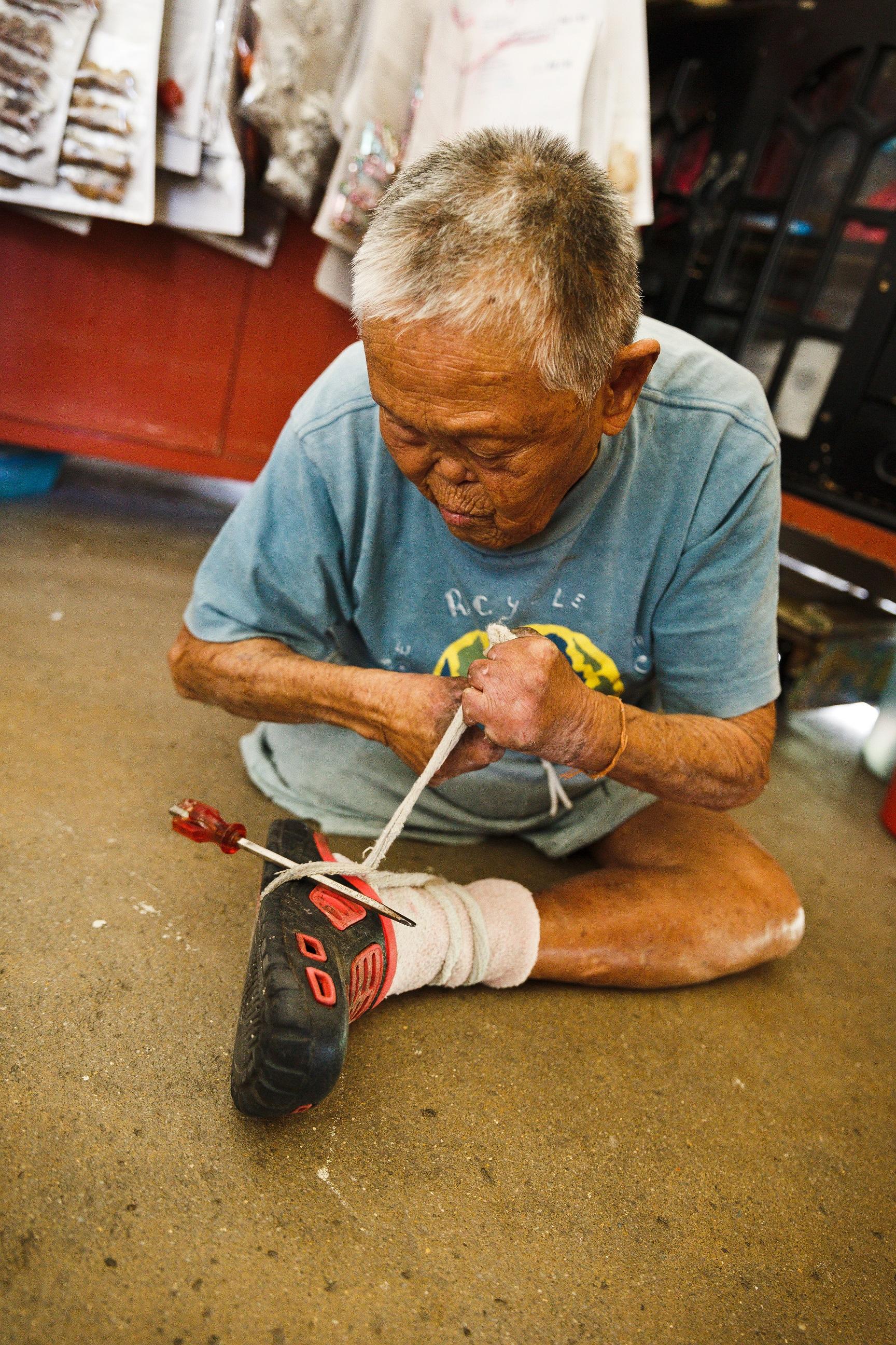 Low dresses his foot himself each day. (photo by Mango Loke)
