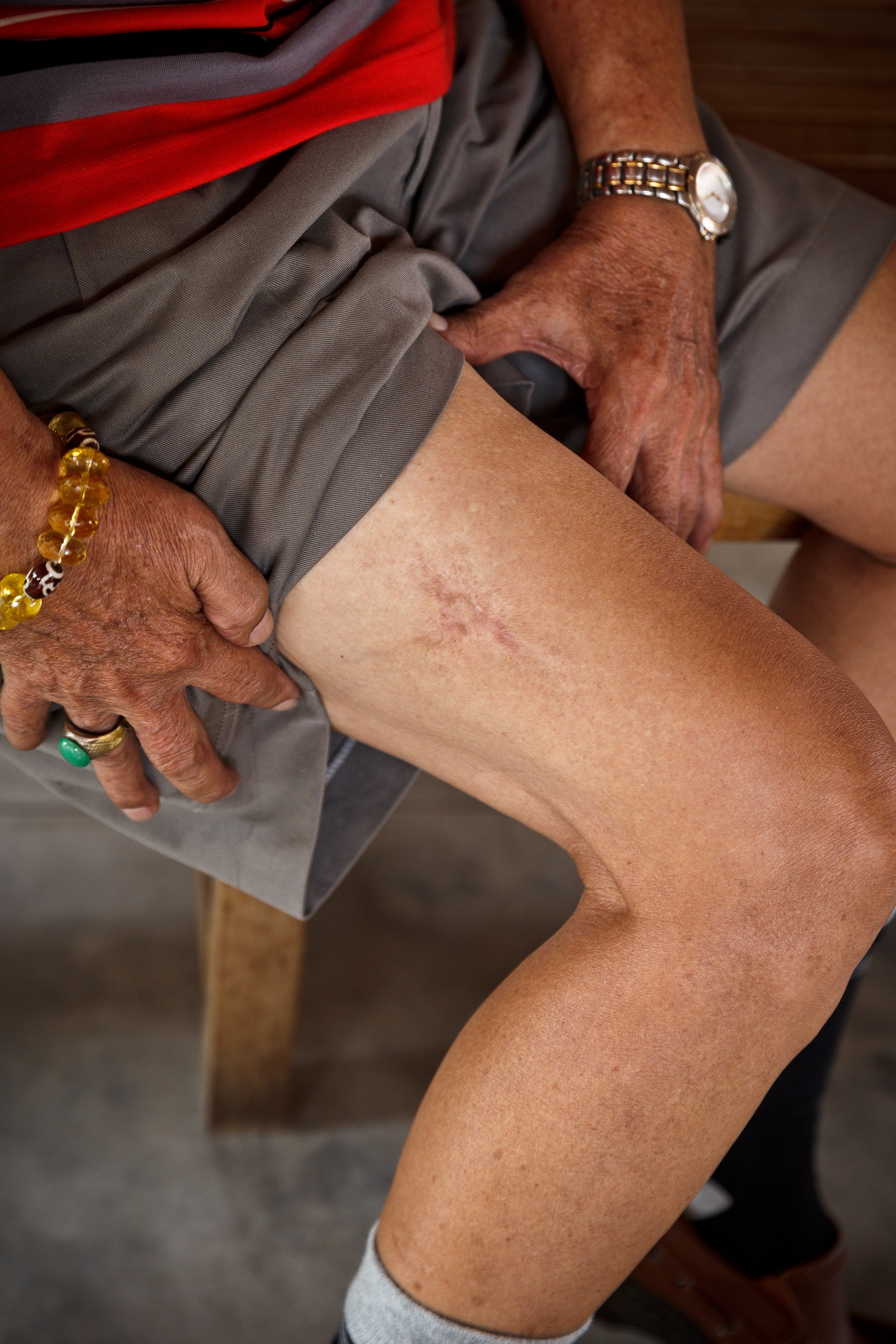 在院民孩子的大腿上接种的疫苗。  (陆奕萌 摄)