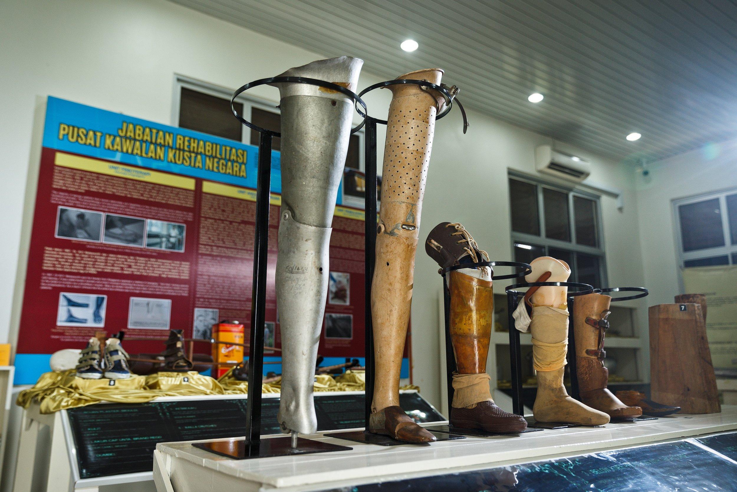 文物馆内陈列的义肢。  (陆奕萌 摄)