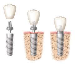 indianapolis-dental-implants