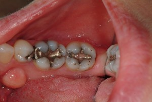 20 year old amalgam (silver/mercury) restorations that appear in tact and are not causing pain or discomfort.