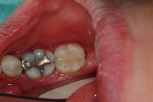 Teeth restored, decay removed, dentin disinfected. Molar with remaining amalgam restoration has 'crack' and too large a 'filling' so it will receive a porcelain crown.