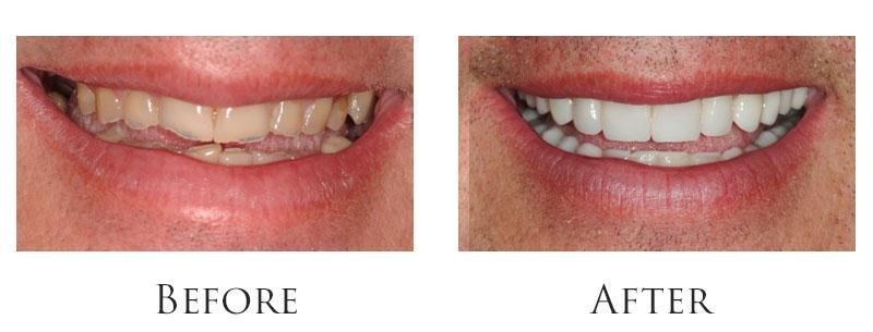 dr-reese-smile-makeover-gallery-9.jpg