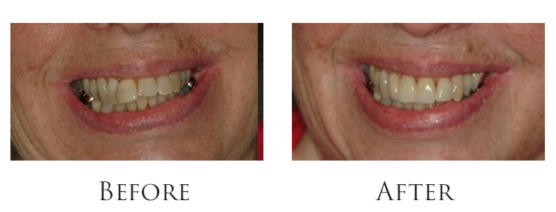 dr-reese-smile-makeover-gallery-7.jpg