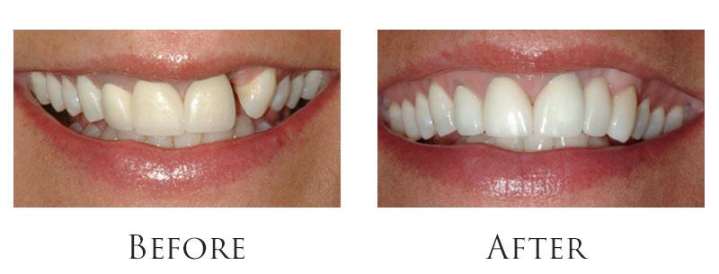 dr-reese-smile-makeover-gallery-6.jpg