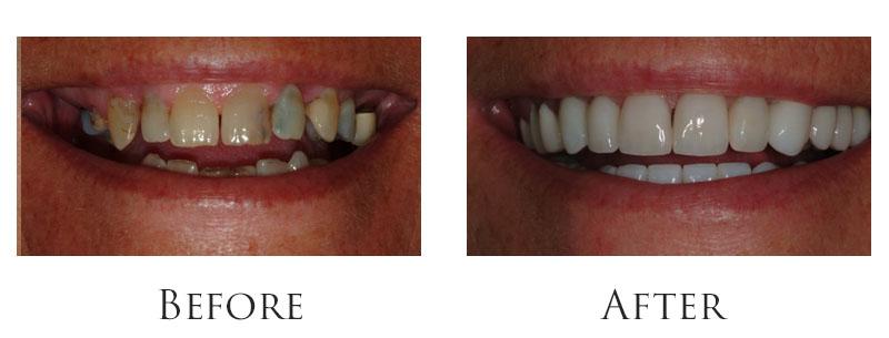 dr-reese-smile-makeover-gallery-4.jpg
