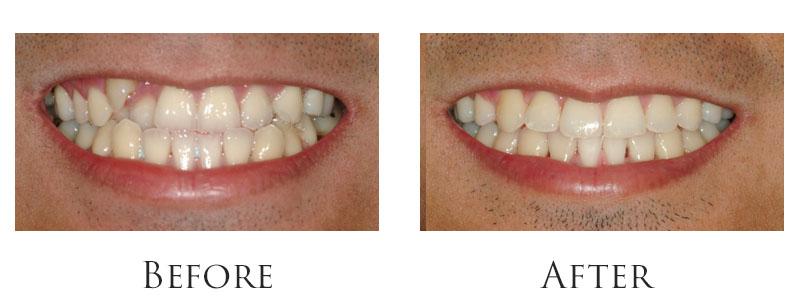 dr-reese-smile-makeover-gallery-3.jpg