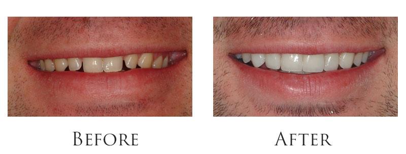 dr-reese-smile-makeover-gallery-2.jpg