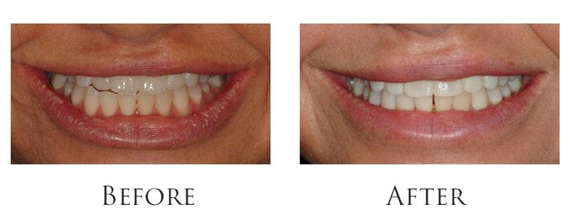 dr-reese-smile-makeover-gallery-1.jpg