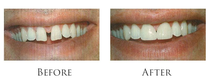 dr-reese-smile-makeover-gallery-8.jpg