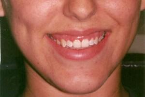 gum-surgery-before-350-300x200.jpg