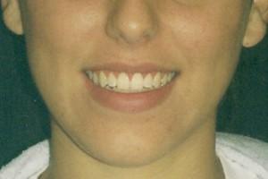 gum-surgery-after-350-300x200.jpg