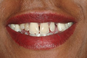 BEFORE:  Missing teeth, spaces, and disproportionate sizes between existing teeth are all 'masked' with the snap on smile. This treatment does have a more limited application and longevity, but offers an immediate improvement and beautiful smile option.