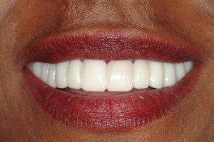 AFTER:  The Snap On Smile option has wonderful applications as for this lady until 'definitive' treatment can be performed.