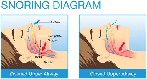snoring2.jpg