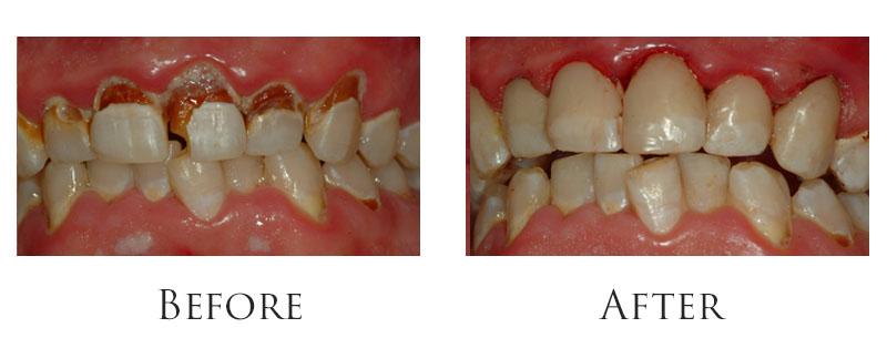 dr-reese-cavity-gallery-3.jpg