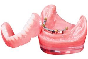 Implant-Bar-Overdenture-All-On-4-300x200 (1).jpg