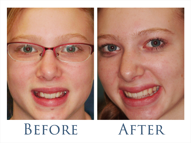 before-after-ortho-2.png