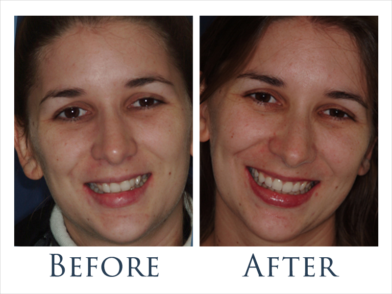 before-after-ortho-1.png