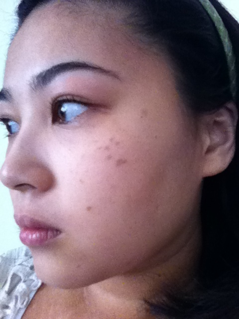 This was taken in 2010 and you can see how dark and prominent my spots were