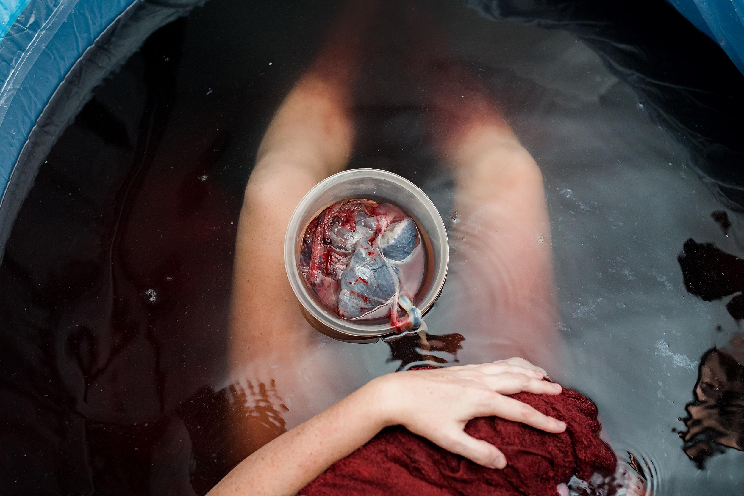floating-placenta-home-water-birth.jpg