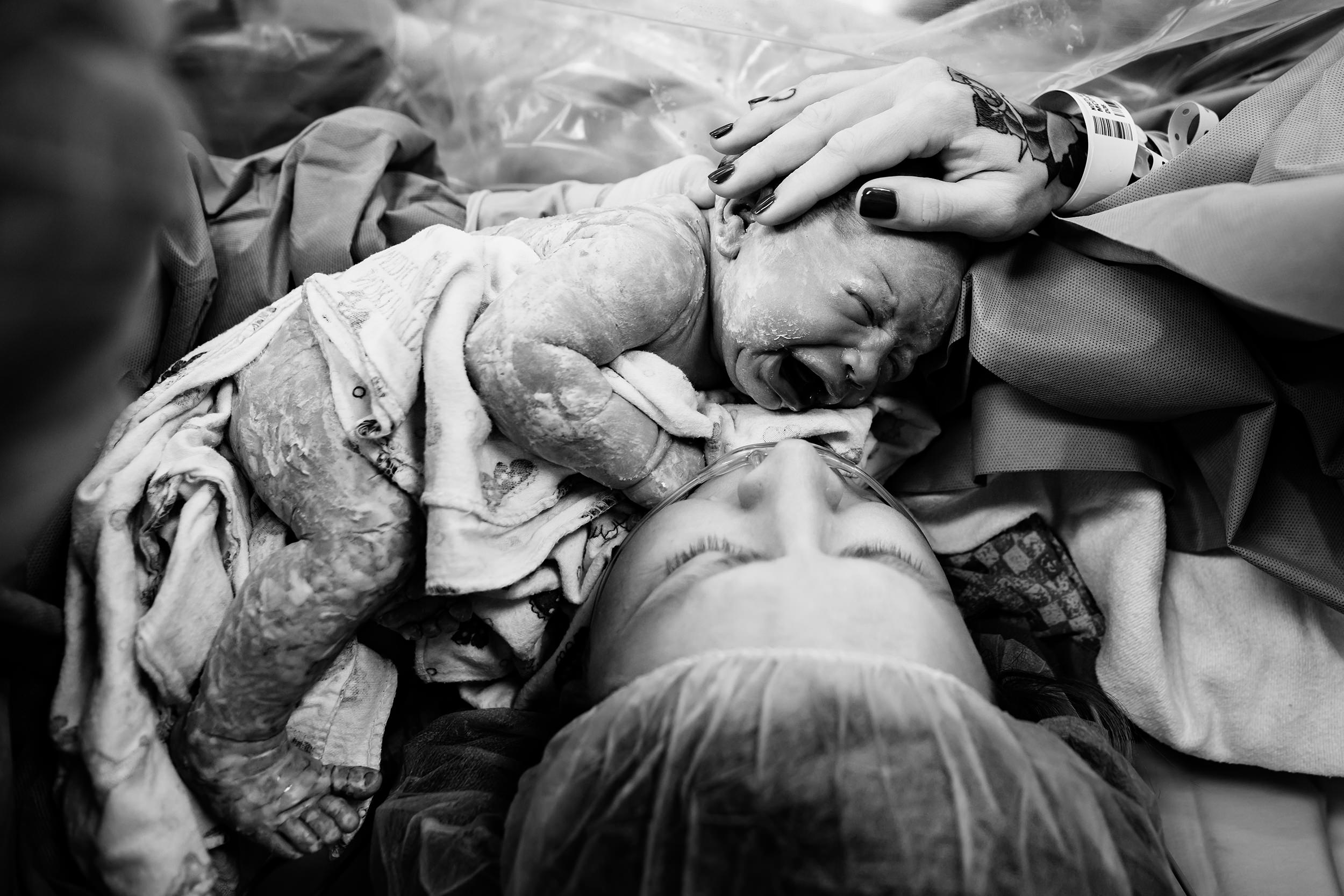 9-newborn-skin-to-skin-with-mom-in-operating-room-theatre-after-cesarean.jpg